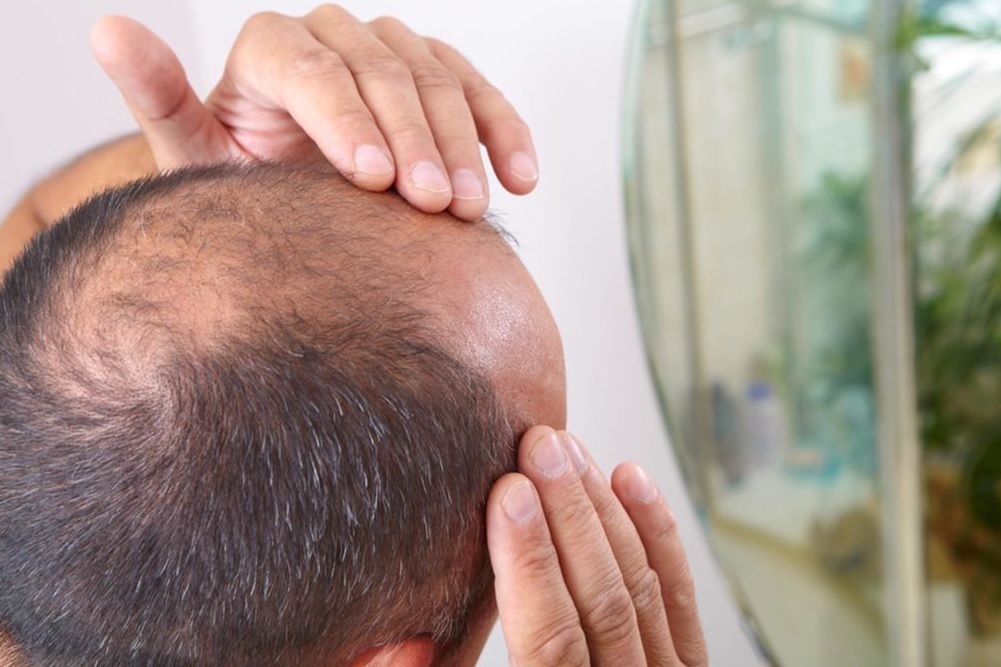 Treatment for Baldness